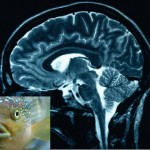 Brain and Fish oil