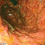 Endoscopy revealing grade 2 diffuse caustic mucosal injury