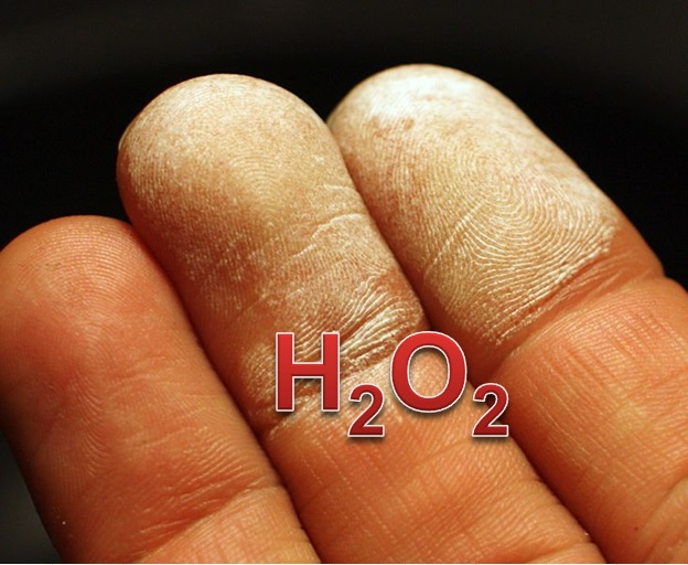 Skin damaged with 35 percent hydrogen peroxide